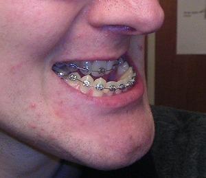 歯の矯正.jpg